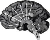 sense3-pathophysiology